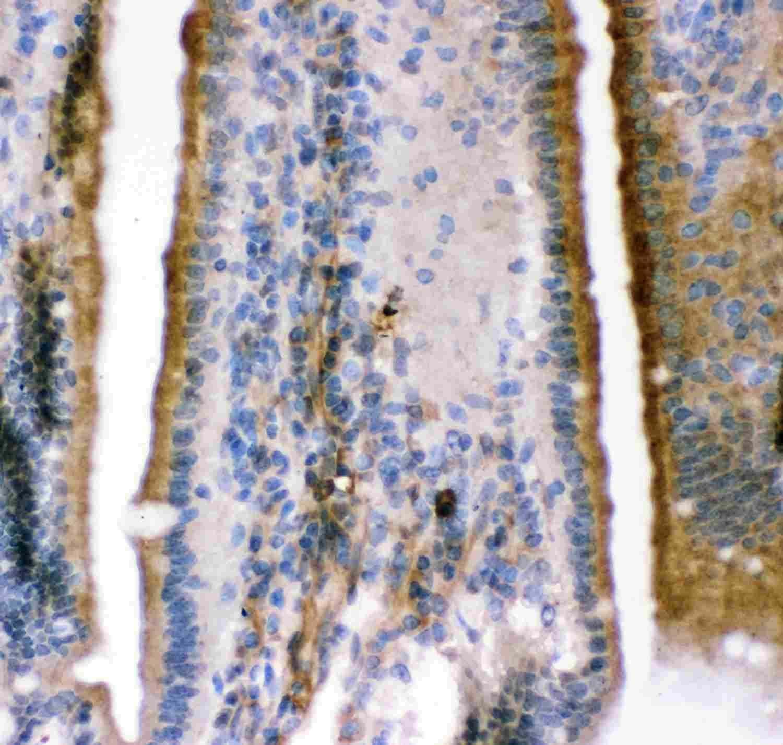 KCNMA1 Antibody in Immunohistochemistry (IHC)