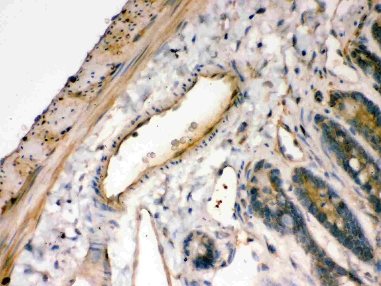IkB alpha Antibody in Immunohistochemistry (Paraffin) (IHC (P))