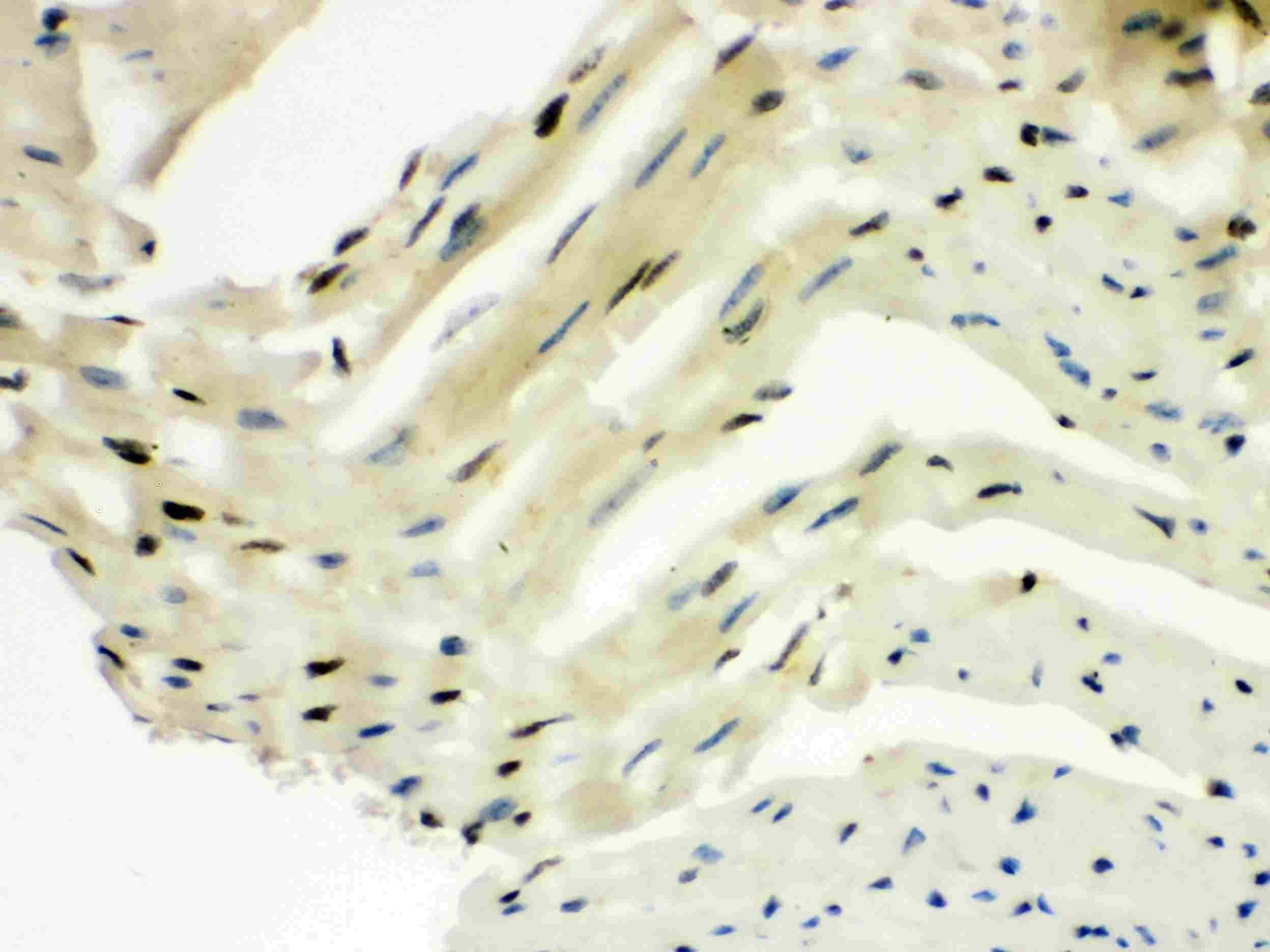 SLUG Antibody in Immunohistochemistry (IHC)