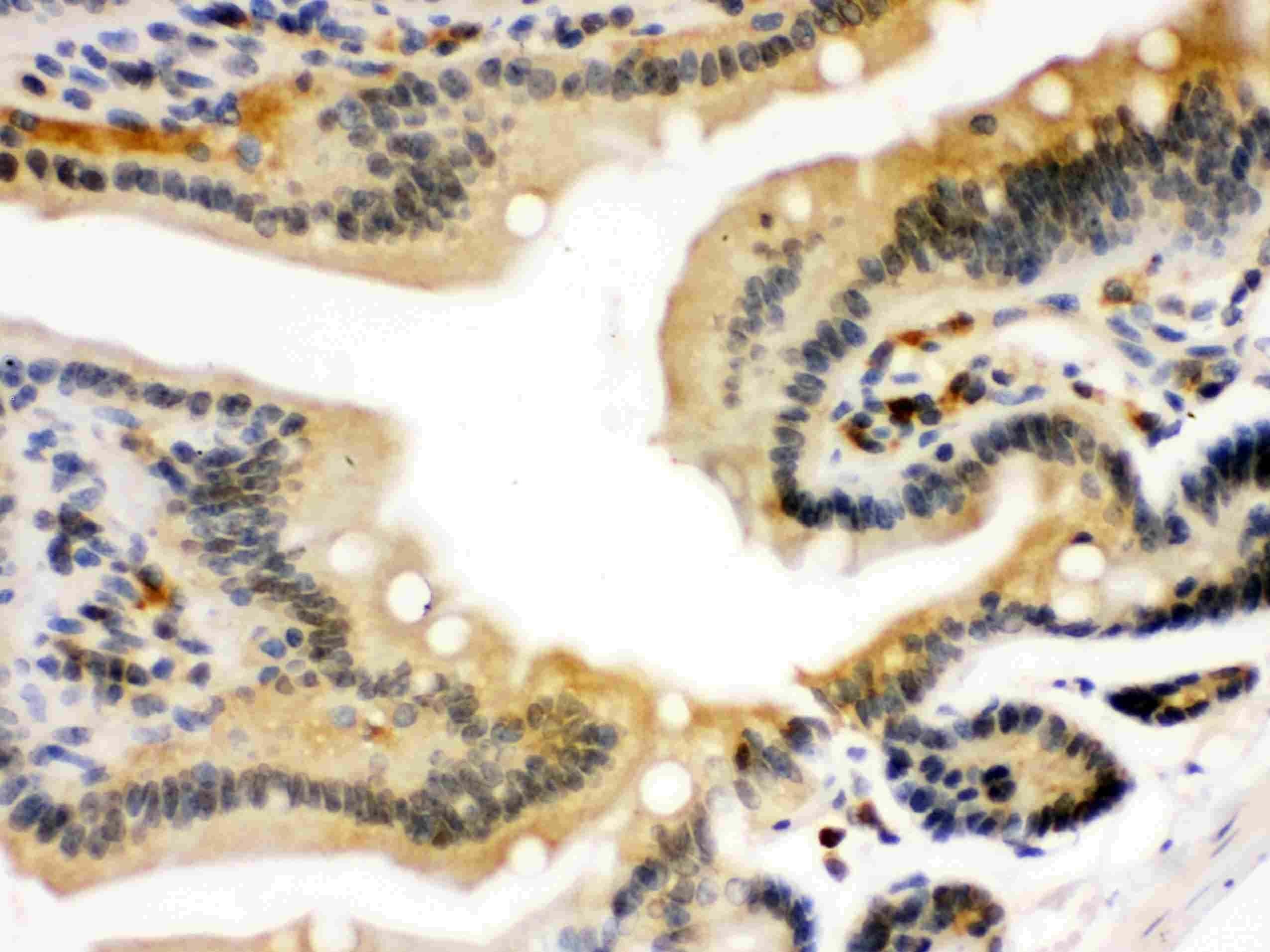 STAT1 Antibody in Immunohistochemistry (IHC)