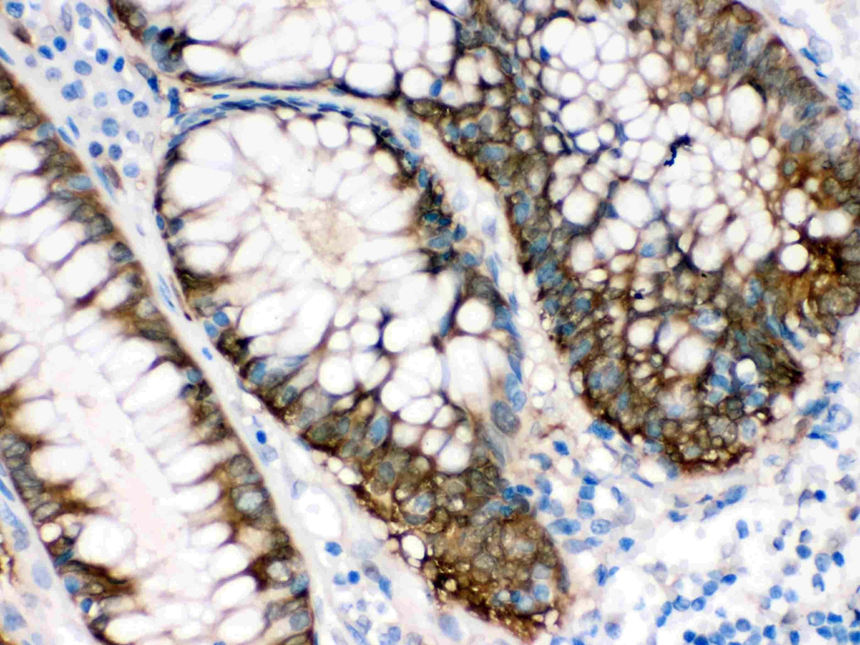 IDH1 Antibody in Immunohistochemistry (Paraffin) (IHC (P))