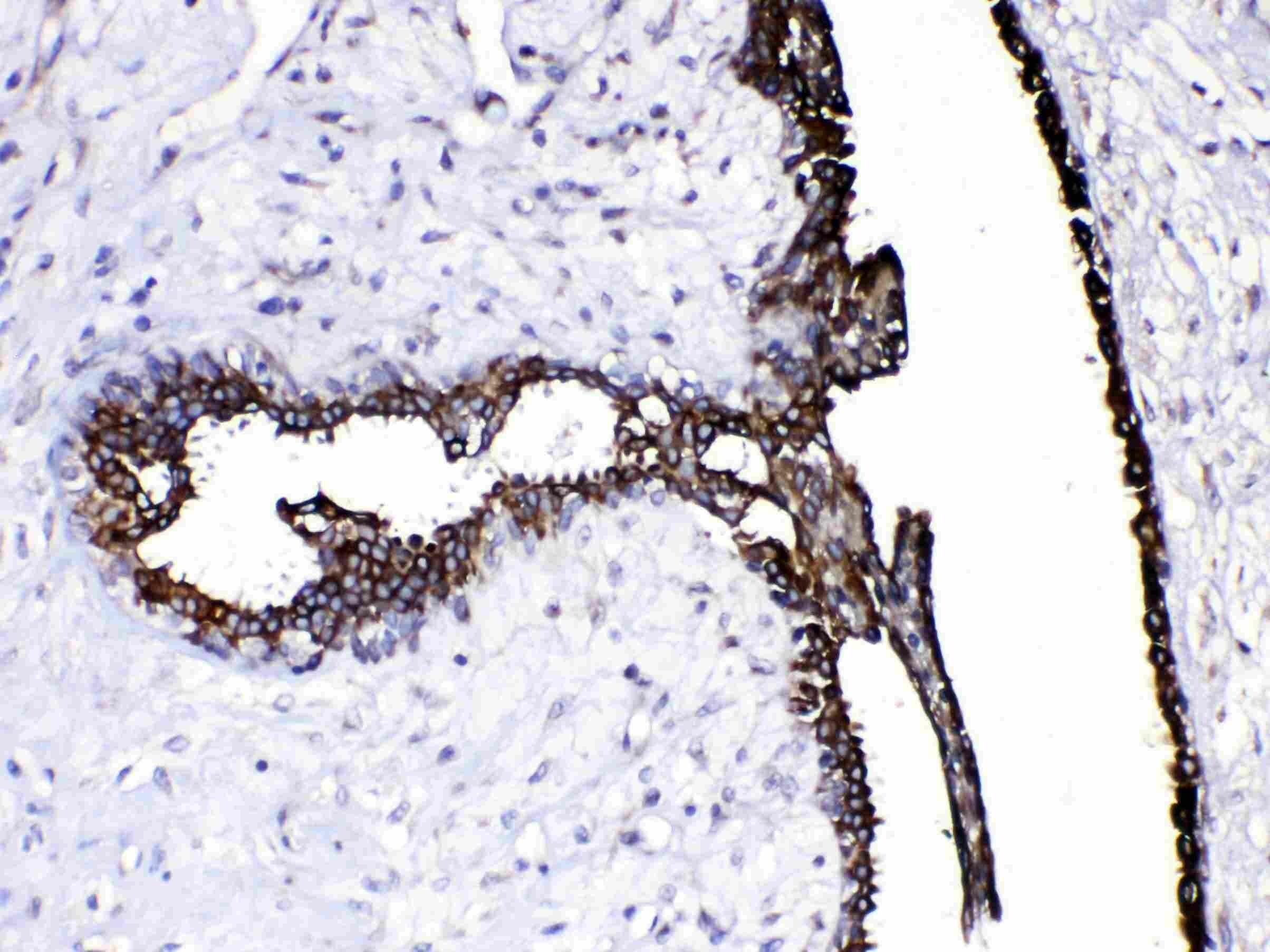 Caspase 8 Antibody in Immunohistochemistry (Paraffin) (IHC (P))