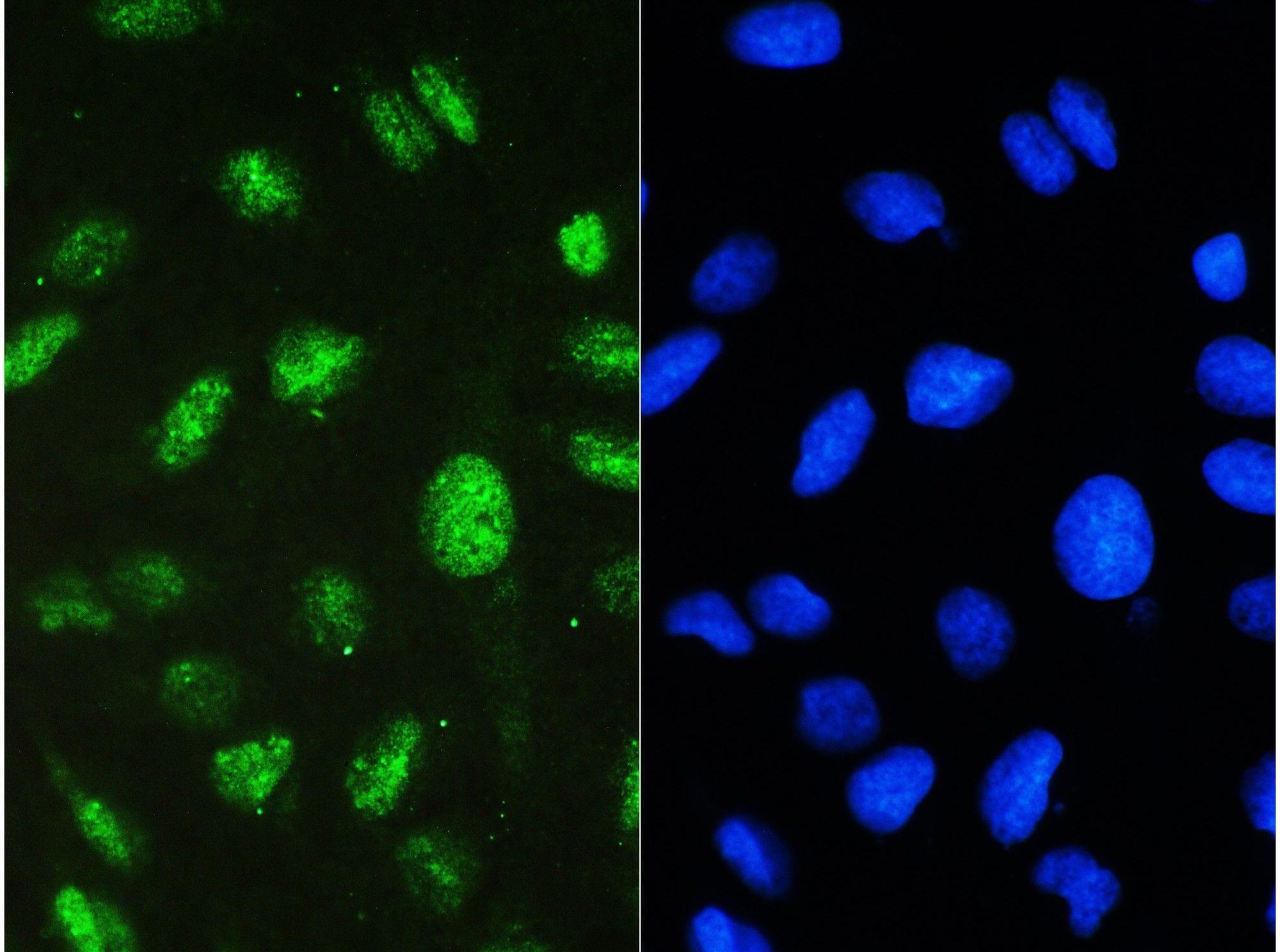 STAT1 Antibody in Immunofluorescence (IF)