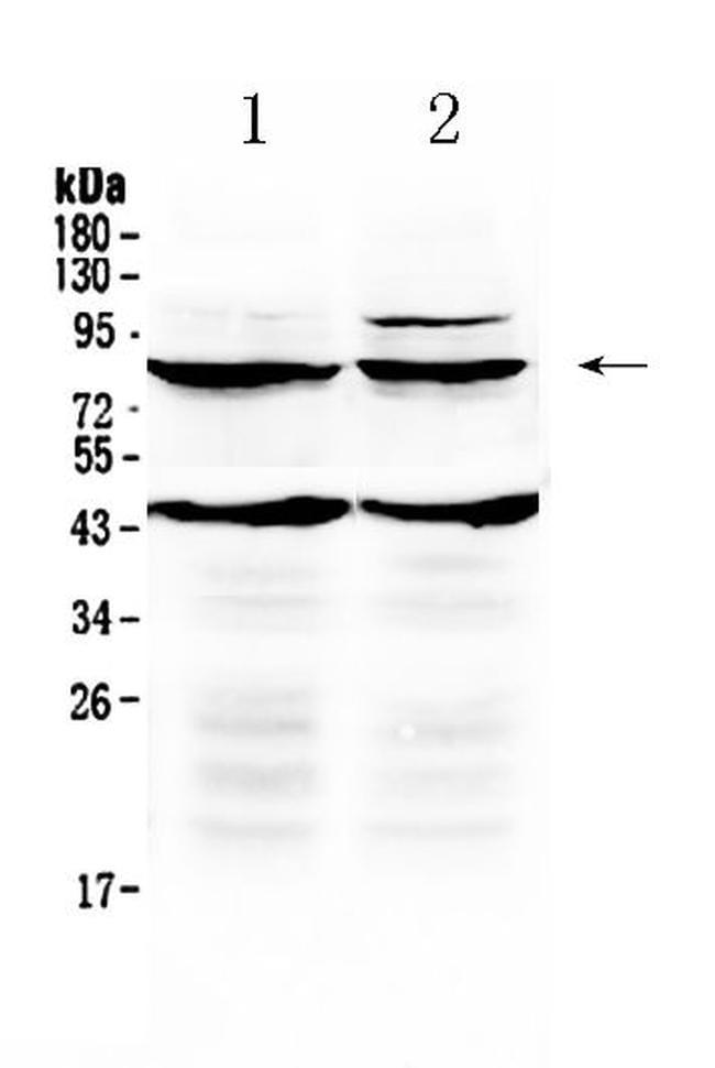 TSH Receptor Antibody in Western Blot (WB)