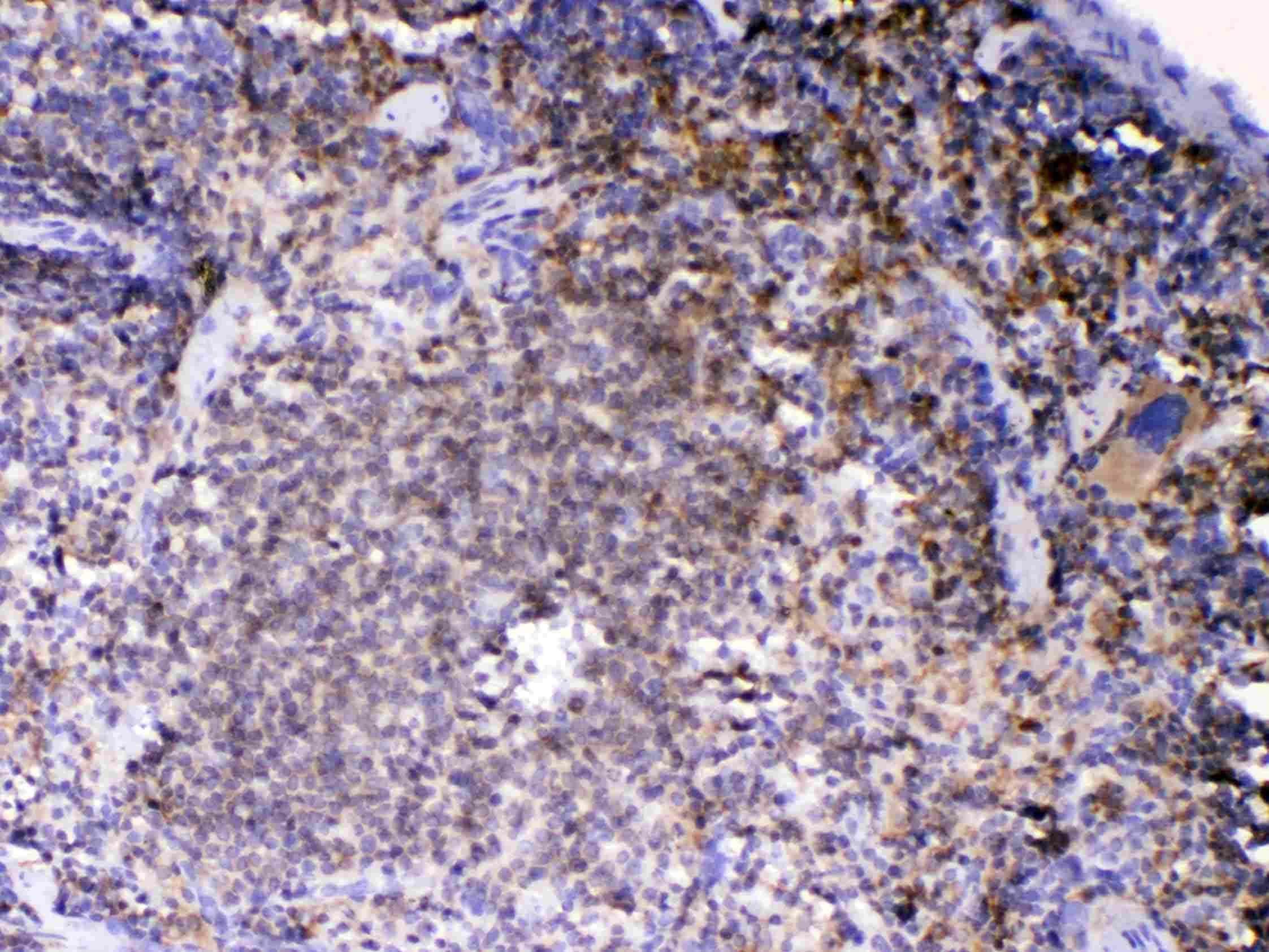 Lyn Antibody in Immunohistochemistry (Paraffin) (IHC (P))
