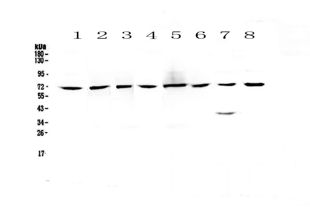 CHRNA4 Antibody in Western Blot (WB)