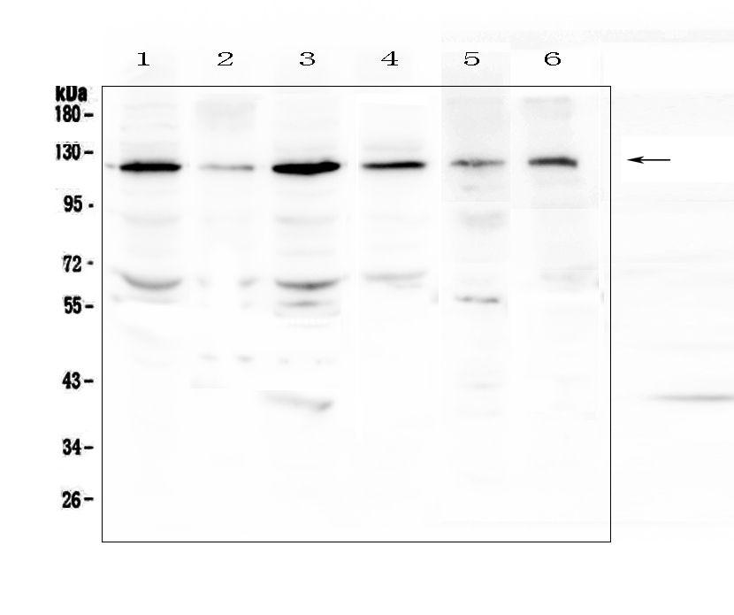 PDGFRB Antibody in Western Blot (WB)