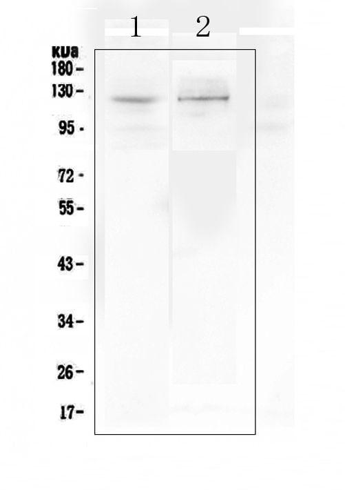 DDR2 Antibody in Western Blot (WB)