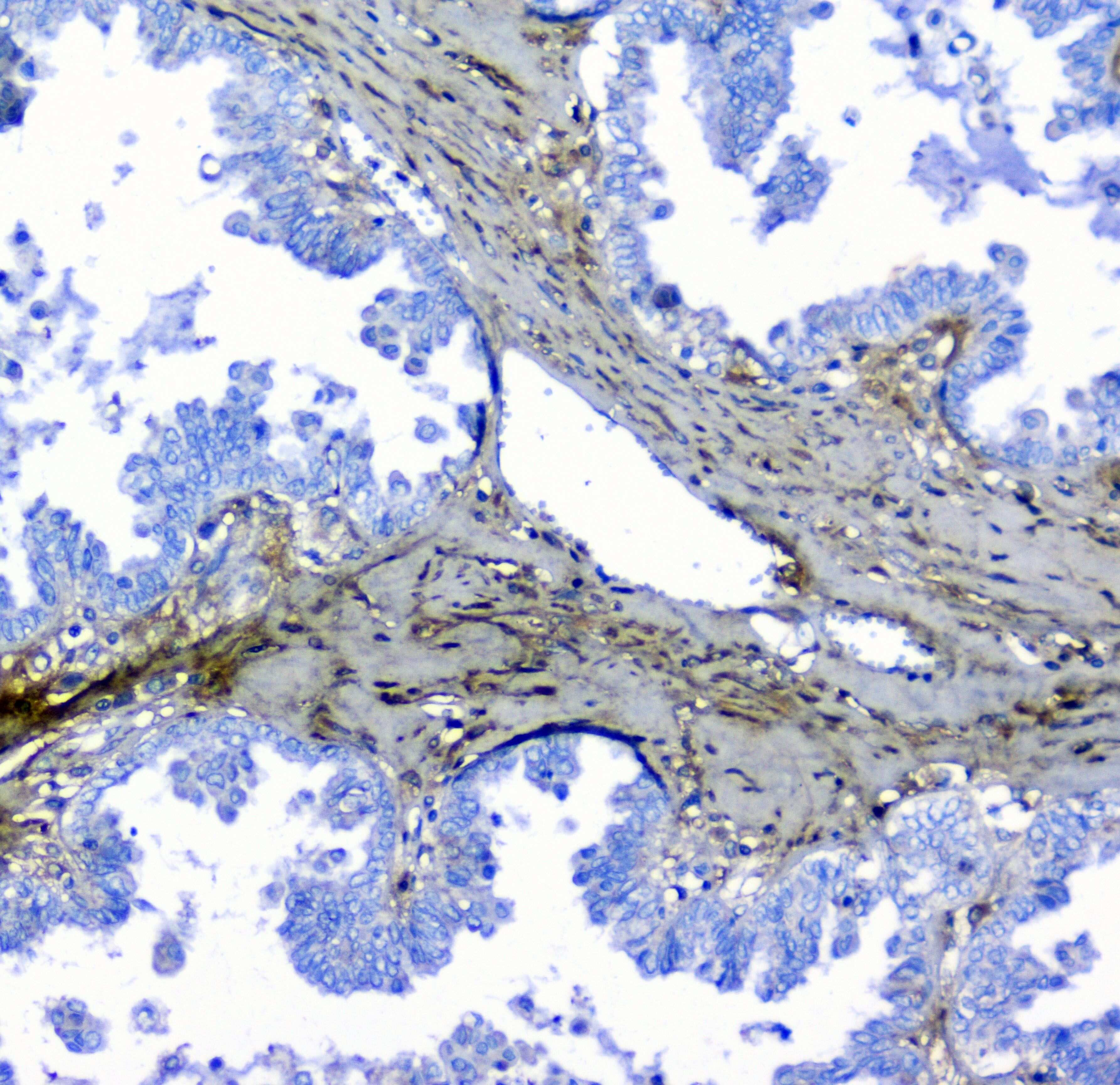 LUM Antibody in Immunohistochemistry (Paraffin) (IHC (P))