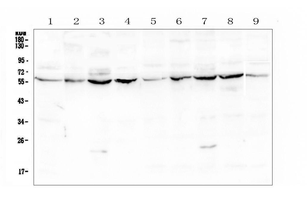 LUM Antibody in Western Blot (WB)