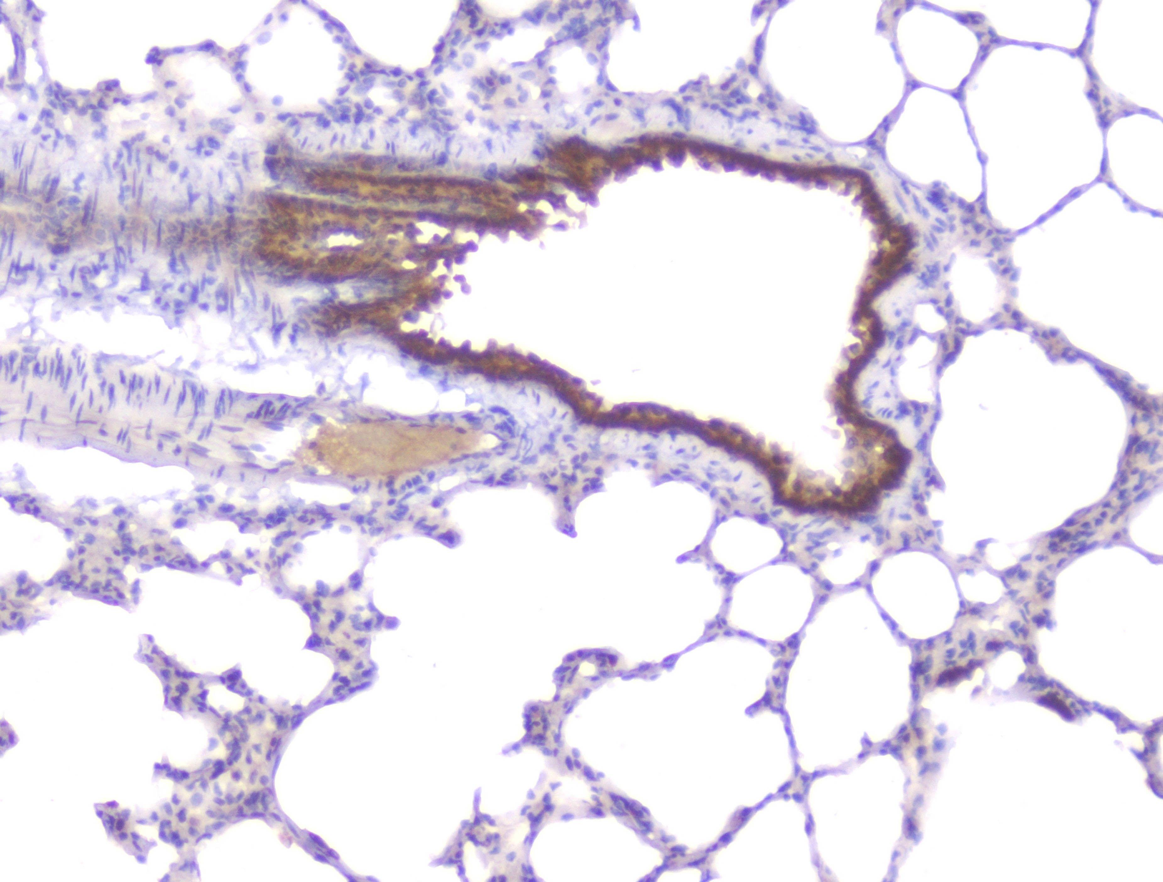 PKC beta-1 Antibody in Immunohistochemistry (Paraffin) (IHC (P))
