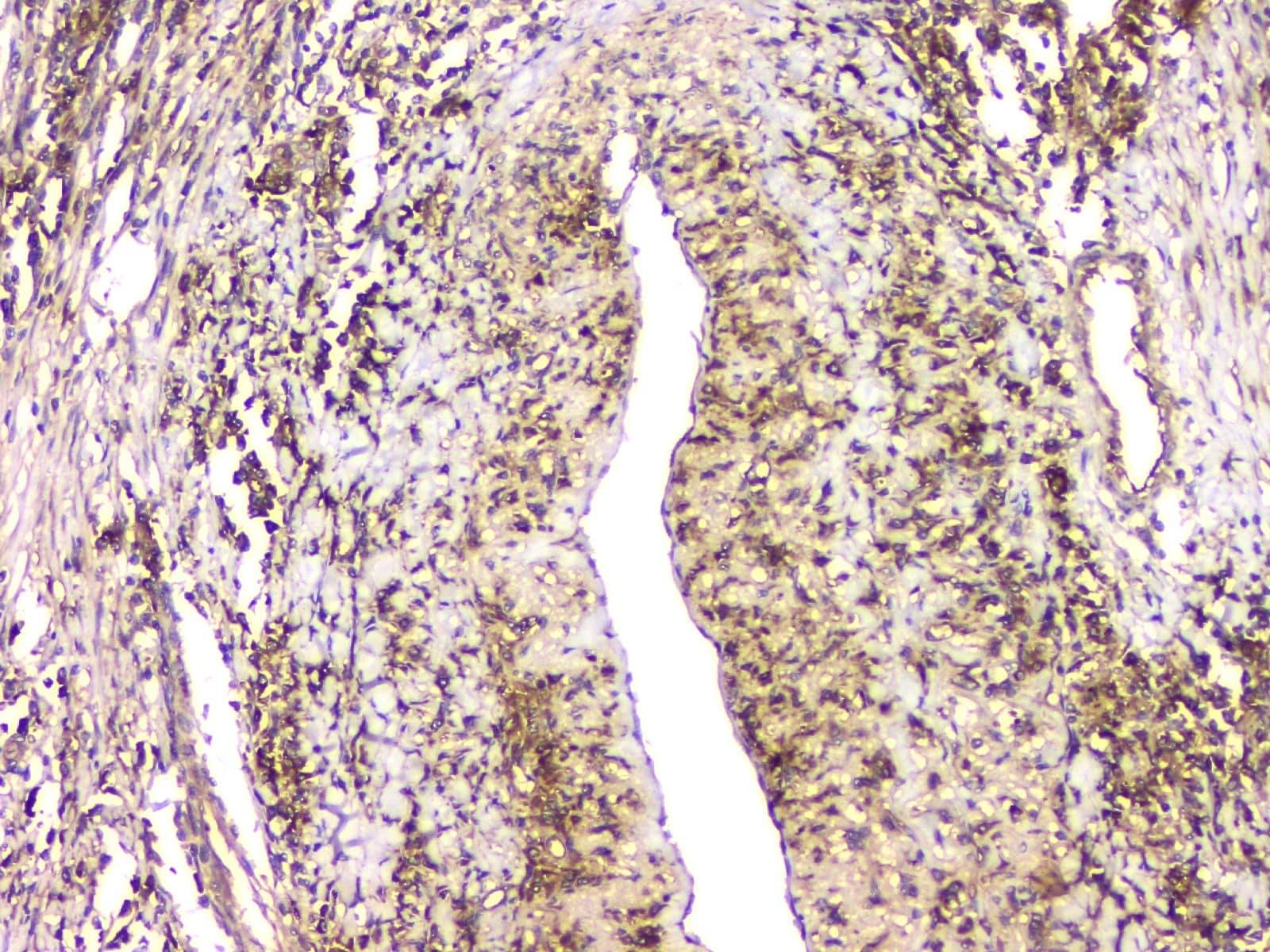 HECTD3 Antibody in Immunohistochemistry (Paraffin) (IHC (P))