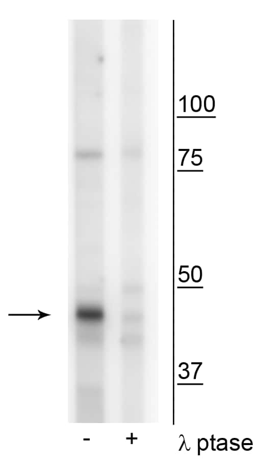 Phospho-Creatine Kinase MT (Tyr153) Antibody in Western Blot (WB)