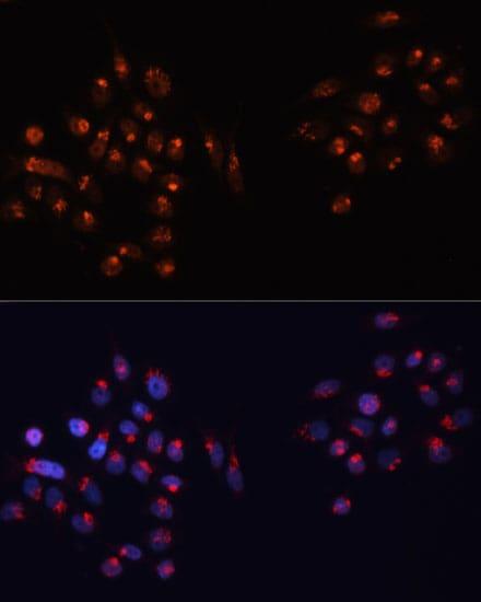 GM130 Antibody in Immunocytochemistry (ICC/IF)