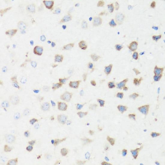 GM130 Antibody in Immunohistochemistry (IHC)