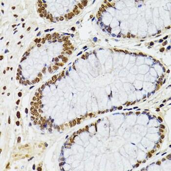 CDX2 Antibody in Immunohistochemistry (Paraffin) (IHC (P))