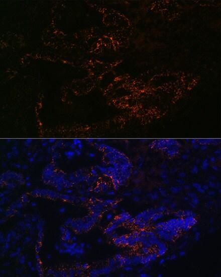 FUT4 Antibody in Immunohistochemistry (IHC)