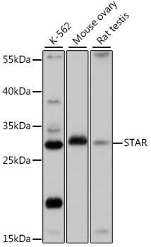 STAR Antibody in Western Blot (WB)
