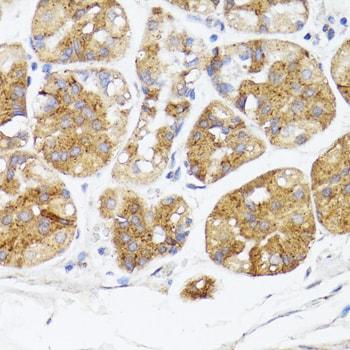 BMPR2 Antibody in Immunohistochemistry (Paraffin) (IHC (P))