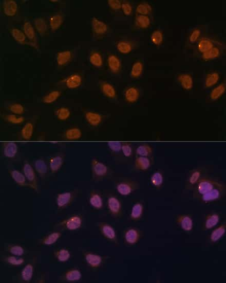 FOXG1 Antibody in Immunocytochemistry (ICC)