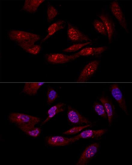eIF6 Antibody in Immunofluorescence (IF)