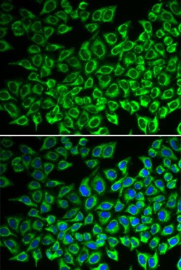 IL12RB1 Antibody in Immunocytochemistry (ICC/IF)