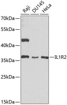 IL1R2 Antibody in Western Blot (WB)