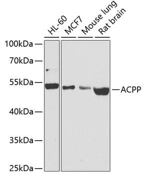 Prostate Specific Acid Phosphatase Antibody in Western Blot (WB)
