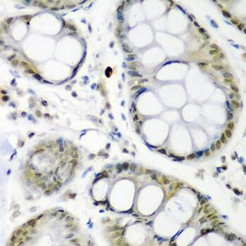 Cdc27 Antibody in Immunohistochemistry (IHC)