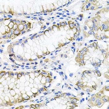 ACVR2A Antibody in Immunohistochemistry (Paraffin) (IHC (P))