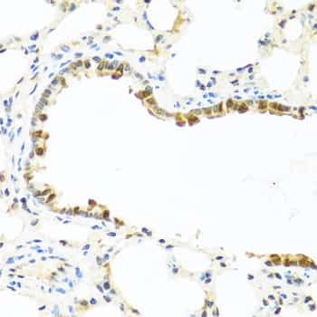 Serum Amyloid P Antibody in Immunohistochemistry (Paraffin) (IHC (P))