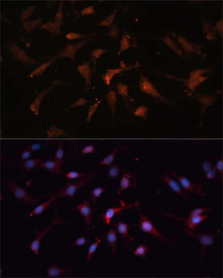 GSK3B Antibody in Immunocytochemistry (ICC)
