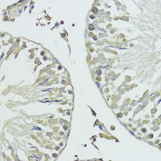 SUMO1 Antibody in Immunohistochemistry (Paraffin) (IHC (P))