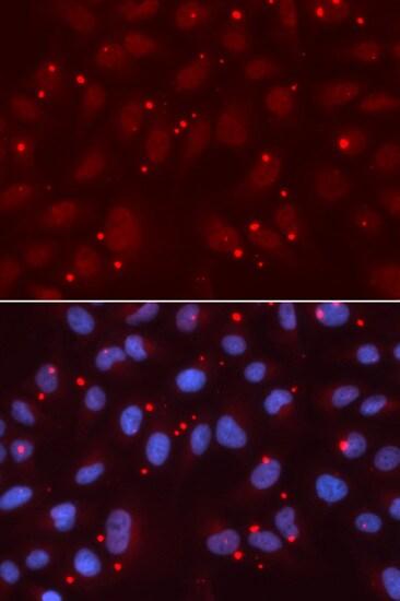 XRCC3 Antibody in Immunocytochemistry (ICC)