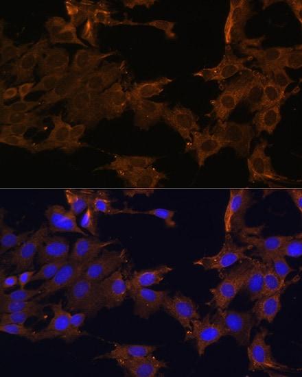 PDGFRB Antibody in Immunocytochemistry (ICC)