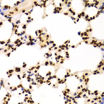 Di-Methyl-Histone H3 (Lys4) Antibody in Immunohistochemistry (Paraffin) (IHC (P))