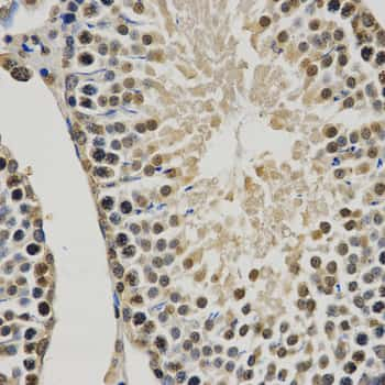 Methyl-Histone H3 (Lys9) Antibody in Immunohistochemistry (Paraffin) (IHC (P))