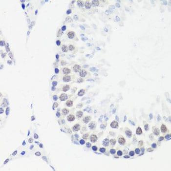 Di-Methyl-Histone H3.1 (Arg17) Antibody in Immunohistochemistry (Paraffin) (IHC (P))