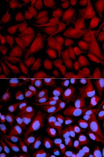 CASK Antibody in Immunocytochemistry (ICC)