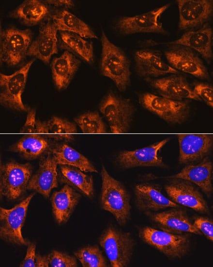 RPS3 Antibody in Immunocytochemistry (ICC)