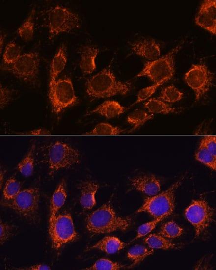 AIF Antibody in Immunocytochemistry (ICC)