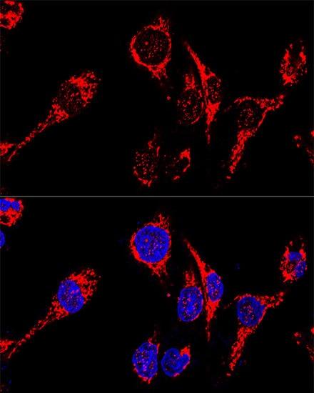 AIF Antibody in Immunohistochemistry (IHC)