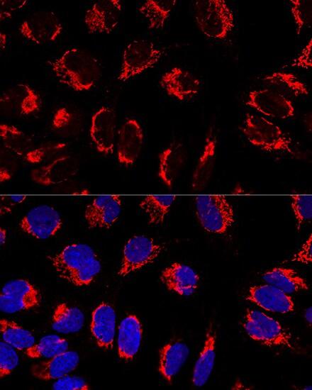 Mitofilin Antibody in Immunocytochemistry (ICC)