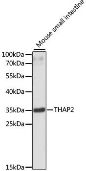 THAP2 Antibody in Western Blot (WB)