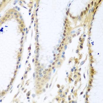 MYBBP1A Antibody in Immunohistochemistry (IHC)