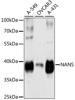 NANS Antibody in Western Blot (WB)