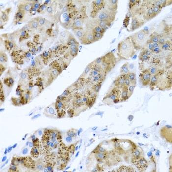 MGP Antibody in Immunohistochemistry (IHC)