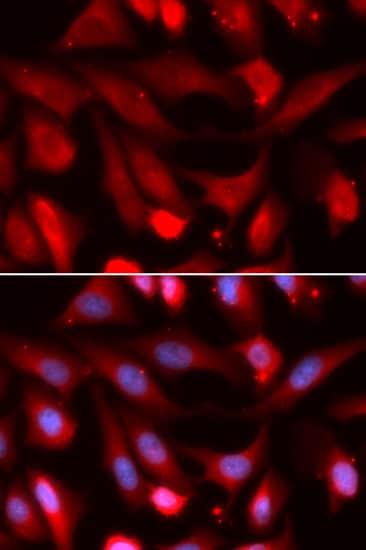 SMAD4 Antibody in Immunocytochemistry (ICC)