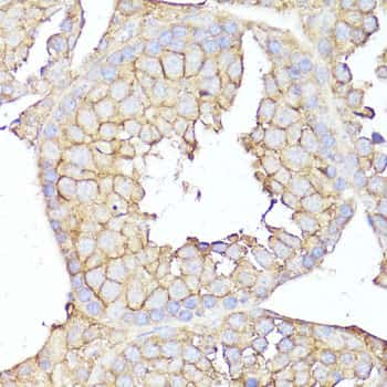 CD10 Antibody in Immunohistochemistry (Paraffin) (IHC (P))