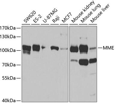 CD10 Antibody in Western Blot (WB)